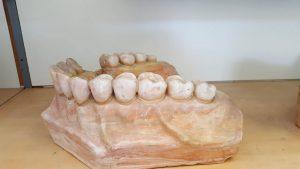 vilica zub